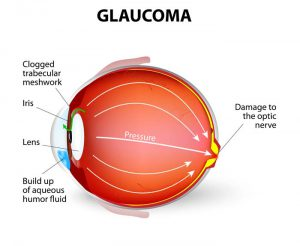 Glaucoma-treatment-chennai