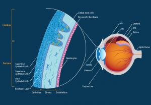 Cornea-Refractive-Surgery-chennai